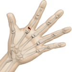 Fractures of the Finger or Hand